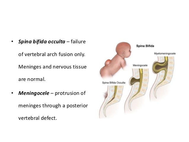 Spinal Anaesthesia - Anatomy & Physiology