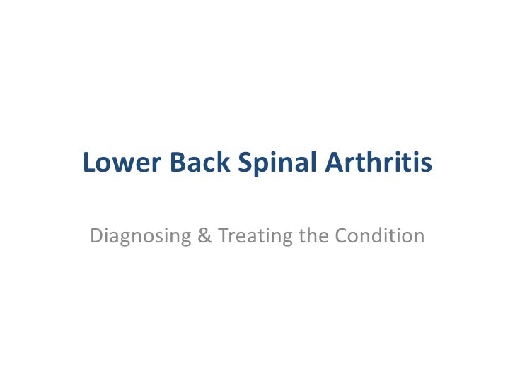 Lower Back Spinal Arthritis <br />Diagnosing & Treating the Condition<br />