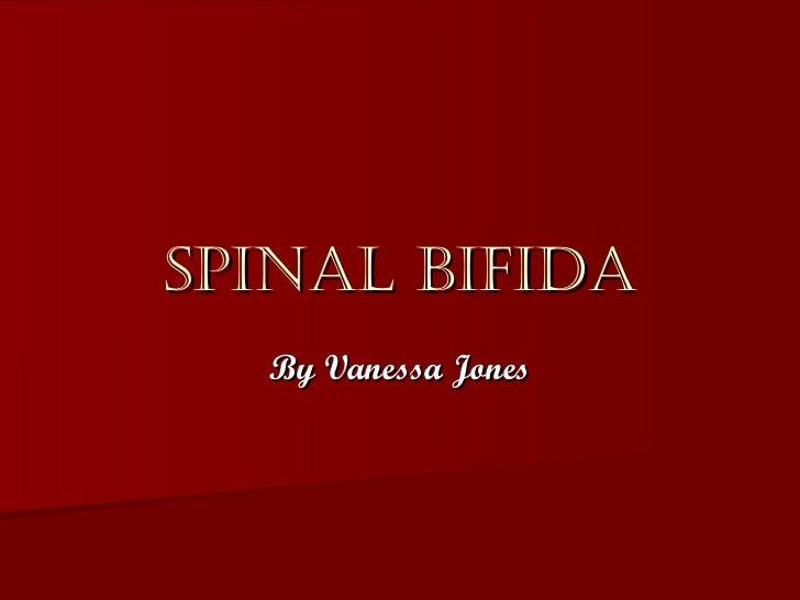 Spinal Bifida By Vanessa Jones
