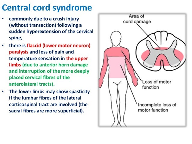 Spinal Cord Anatomy 3