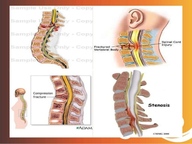 Spinal cord injury sci sciox Images