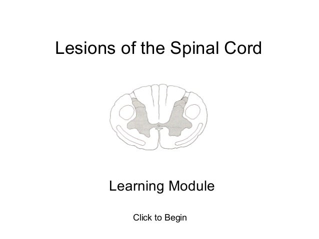 Lesions of the Spinal Cord      Learning Module         Click to Begin