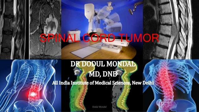 SPINAL CORD TUMOR DR DODUL MONDAL MD, DNB All India Institute of Medical Sciences, New Delhi Dodul Mondal