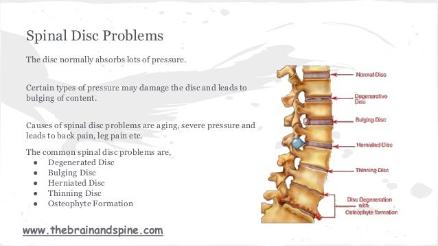 Spinal Disk Problems  U0026 Its Treatment