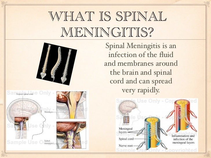what is meningitis Meningitis or spinal meningitis is inflammation of the tissue around the brain and spinal cord discover the differences between types of meningitis.