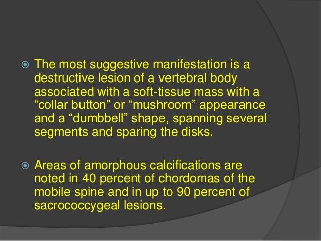  6. Spinal tumors associated with. A. NF 1. Neurofibromas. B. NF 2. Ependymoma and Meningioma. C. VHL. Hemangioblastoma.