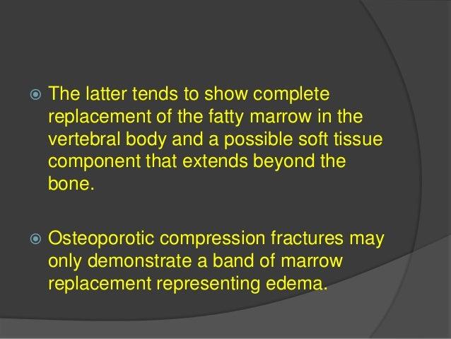 Solitary Lesions Aneurysmal Bone Cyst.  Aneurysmal bone cyst (ABC) represents fewer than 1 percent of all primary bone tu...