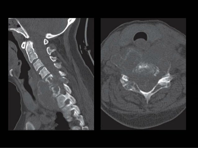  5. Which of these are eccenteric tumors?  A. Subependymoma.  B. Ependymoma.  C. Astrocytoma.  D. Ganglioglioma.