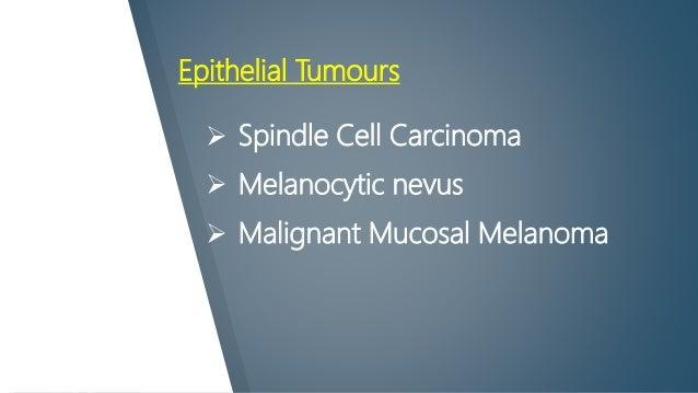 Epithelial Tumours  Spindle Cell Carcinoma  Melanocytic nevus  Malignant Mucosal Melanoma