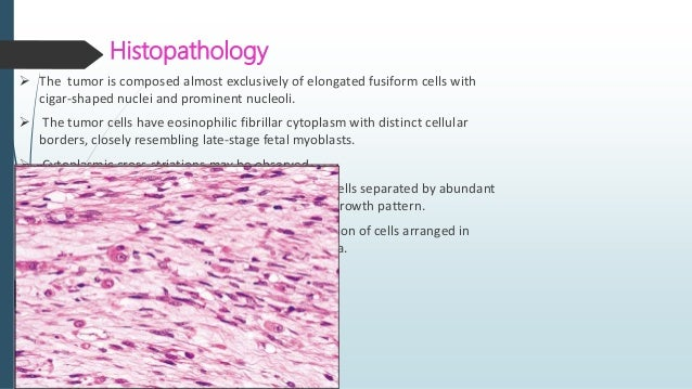 Histopathology  Encapsulated tumor that shows two microscopic patterns in varying amounts:  ANTONI A – streaming fascicl...