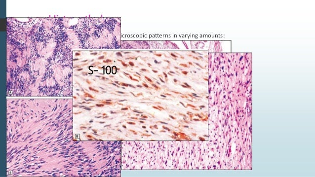 Neurofibroma  Most common type of peripheral nerve neoplasm.  Arises from a mixture of cell types; schwann cells & perin...