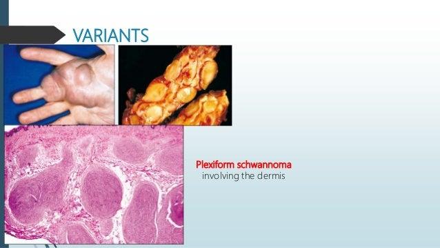 Malignant peripheral nerve sheath tumor  Malignancy of peripheral nerve origin.  5 % of all soft tissue tumors.  50% oc...