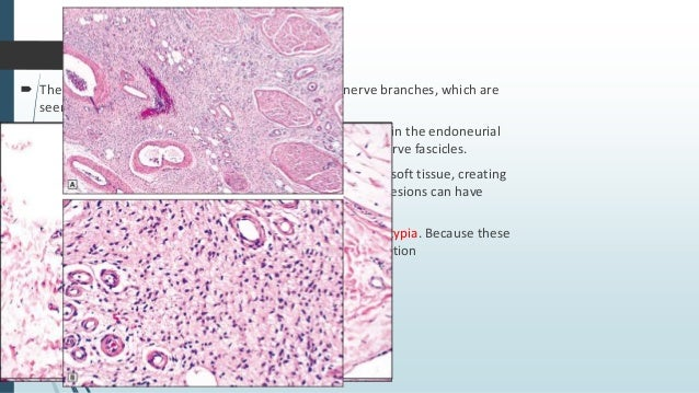  The classic spindle cell lipoma consists of a relative equal mixture of mature fat and spindle cells.  The spindle cell...
