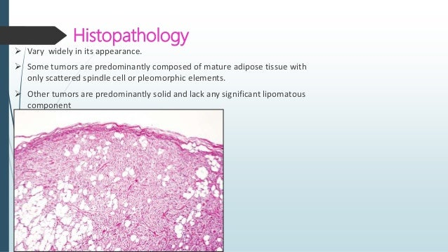 Hemangiopericytoma - Solitary Fibrous Tumor  First coined by Stout and Murray for tumors thought to originate from the pe...