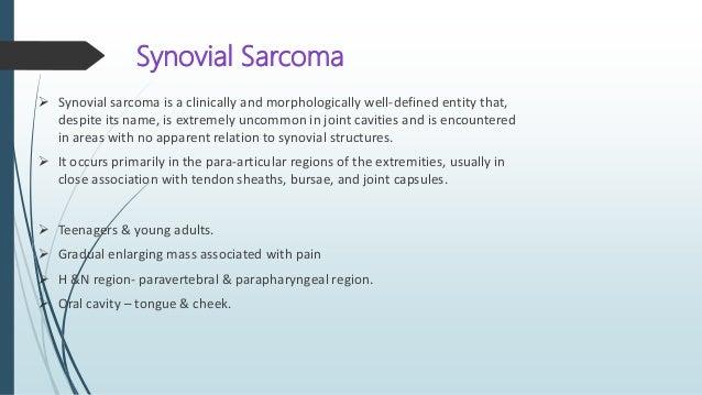 Salivary gland origin Myoepithelioma Myoepithelial carcinoma