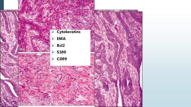 Myoepithelioma  Myoepithelium -rich pleomorphic adenoma comprise a spectrum of benign myoepithelial tumor with overlappin...