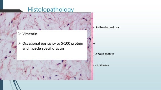 Diagnosis of Spindle cell Neoplasm Clinical manifestation of lesion Histologic architecture + IHC DIAGNOSIS