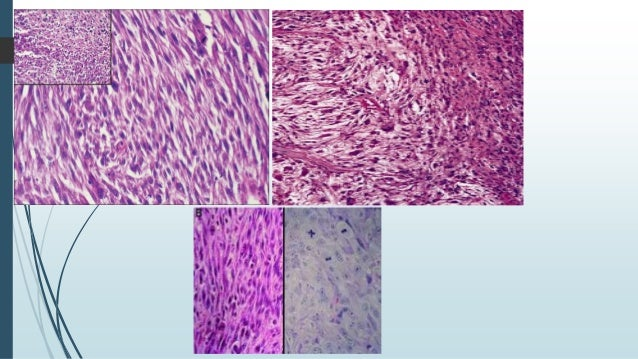  Biphasic tumors.  Conventional SCC admixed with spindled/pleomorphic tumour cells.  Squamous cell component can range ...