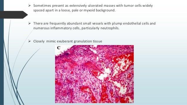 Immunohistochemistry  AE1/AE3  Cytokeratin, K1, K18  Vimentin  Carcinoembryonic antigen  p63  SMA -30%  MSA -15%, d...