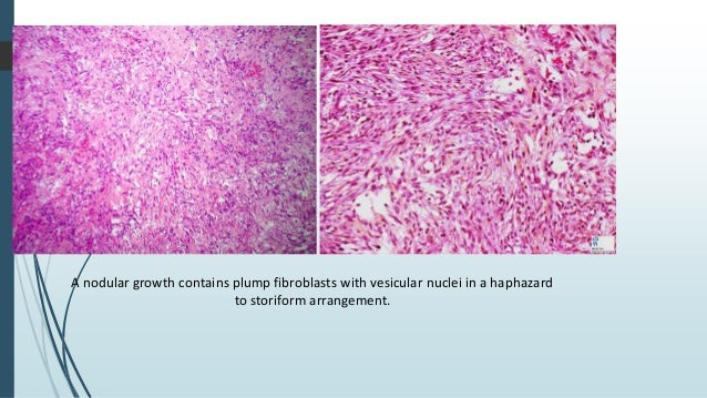  Unencapsulated with an infiltrative margin.  The component spindle cells are plump, often pleomorphic and arranged in a...