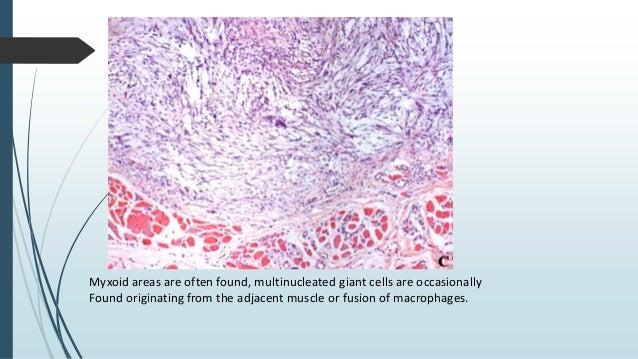 Immunohistochemistry  The spindle cells often show both a myofibroblastic and histiocytic immunoprofile.  SMA, MSA, vime...