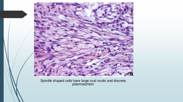 Benign Fibrous Histiocytoma  Diverse group of tumors that exhibit both fibroblastic and histiocytic differentiation.  Ce...