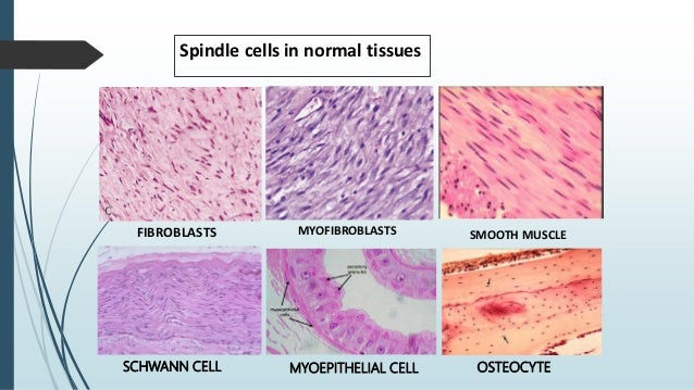 Spindle cells in normal tissues FIBROBLASTS MYOFIBROBLASTS SMOOTH MUSCLE SCHWANN CELL MYOEPITHELIAL CELL OSTEOCYTE