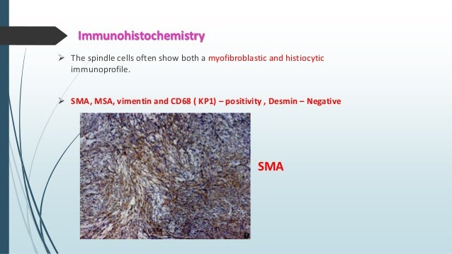 Histopathology  Fairly well-demarcated & often circumscribed at the periphery.  Cellular proliferation of spindle shaped...