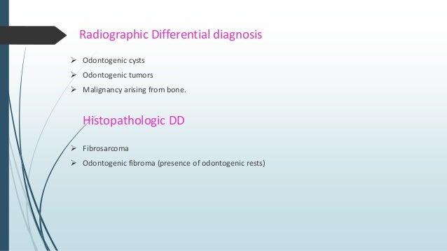 Classification I. ADULT – TYPE FIBROSARCOMA a. Myxoid type (myxofibrosarcoma, low grade myxoid MFH) b. Fibromyxoid type ( ...
