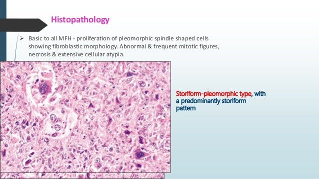 Spindle Cell Lesions Of Head Neck
