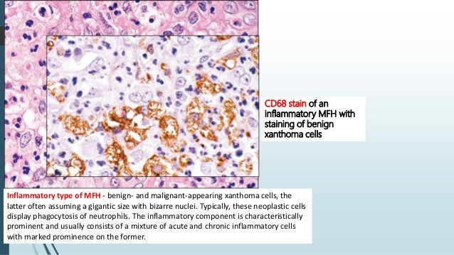 Clinical features  Rare neoplasms with predilection for H& N region.  Most frequently in the first 4 decades of life (me...