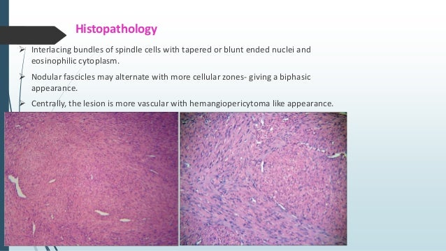 Spindle shaped cells with fasciculated architecture, hypocellular fibrous areas with numerous plasma cells, and concurrent...