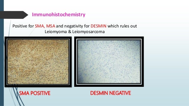 Immunohistochemistry  SMA  MSA POSITIVE  DESMIN  ANAPLASTIC LYMPHOMA KINASE-1 (ALK-1) - 35 TO 60 % POSITIVE SMA