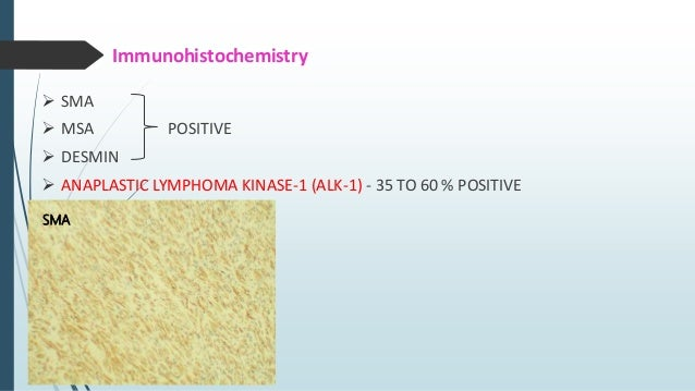 Immunohistochemistry  SMA- POSITIVE  Calponin- Diffusely Positive  Desmin – Focal Positive  h-caldesmon- Negative  AL...