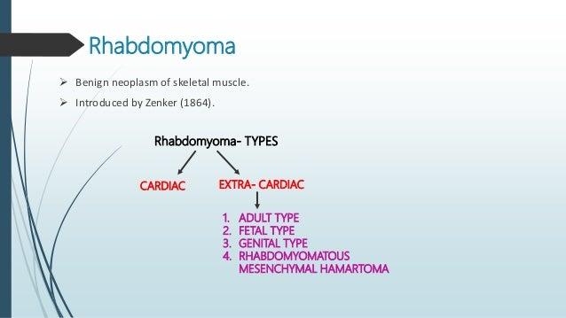 NATIONAL CANCER INSTITUTE CLASSIFICATION OF RHABDOMYOSARCOMA (1992) Classification