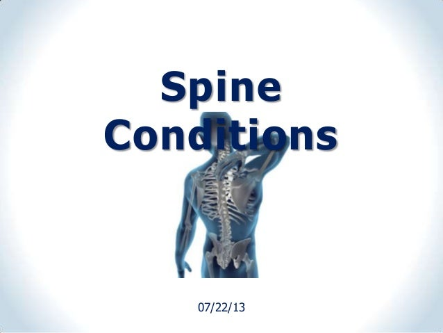 07/22/13 Spine Conditions