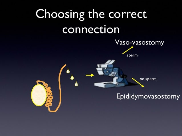 Extract sperm from vasectomy patient