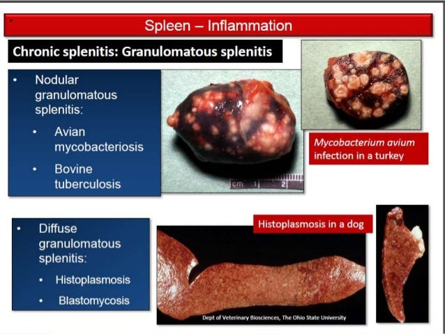 Spleen and lymph nodes