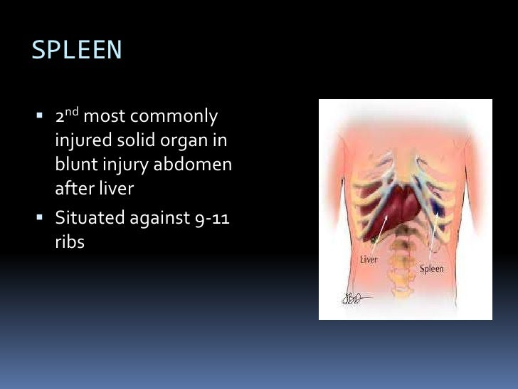 Splenic Injuries