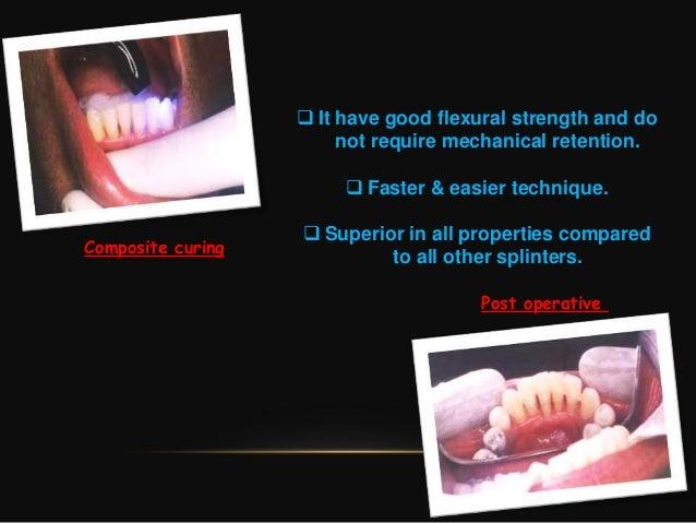 Coronoplasty in periodontics