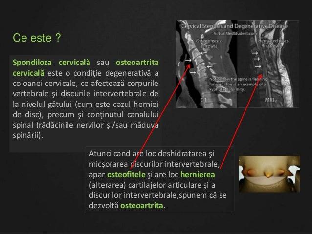 Spondiloza cervicala  08 03 2015 Slide 2