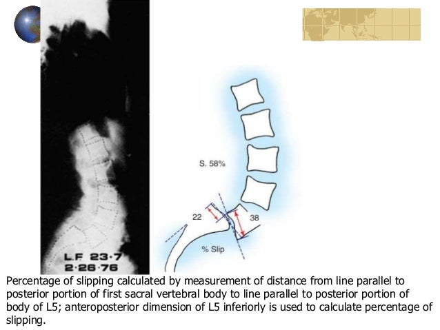 define spondylothesis Isthmic spondylolisthesis is produced when bones connecting the facet joints in the posterior spine are fractured causing anteriolisthesis of the vertebra.