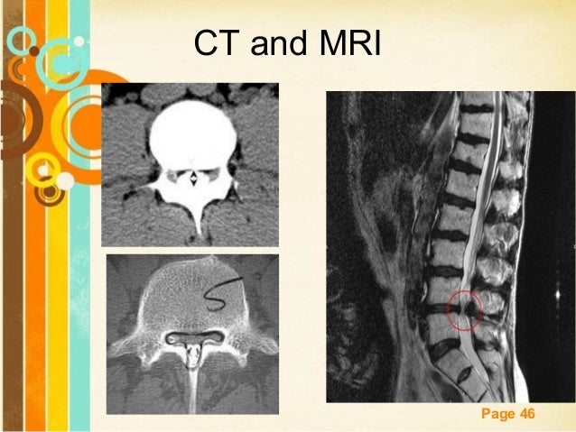 And ddx ct and mri free powerpoint templates page 46 toneelgroepblik Image collections