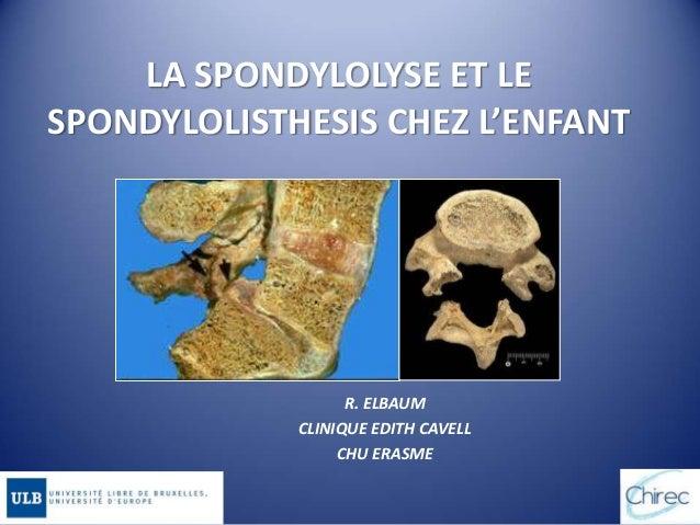 LA SPONDYLOLYSE ET LE SPONDYLOLISTHESIS CHEZ L'ENFANT R. ELBAUM CLINIQUE EDITH CAVELL CHU ERASME