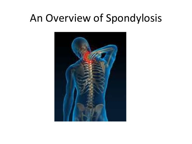 An Overview of Spondylosis
