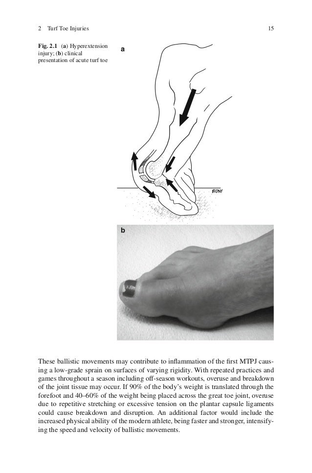 Sports medicine and arthroscopic surgery of the foot and ankle