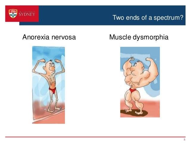 Stigmatization of anorexia nervosa and muscle dysmorphia Slide 3