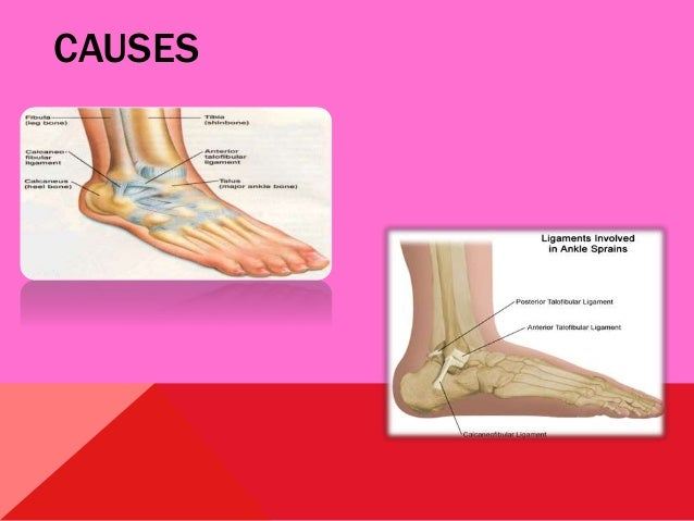Sprains Slide 3