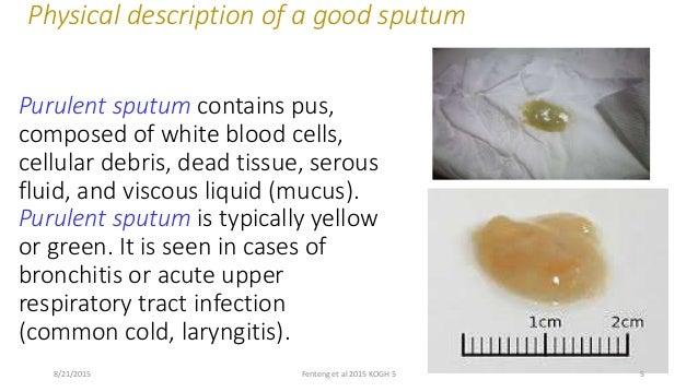 sputum examination and analysis, Skeleton