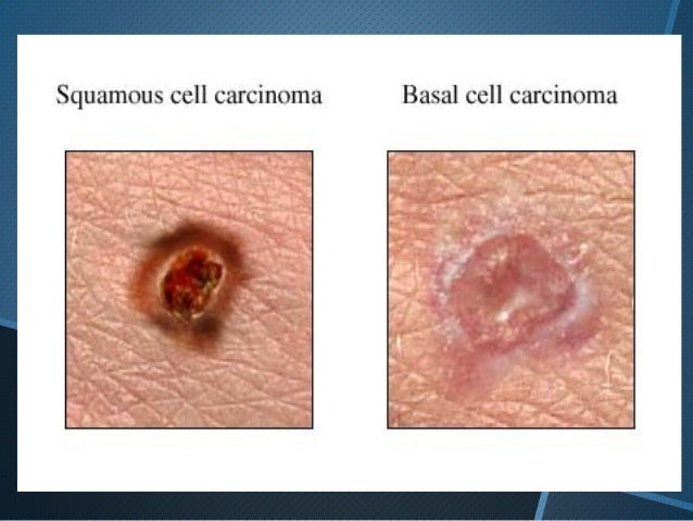 squamous cell carcinoma by dr. ashfaq afridi, Human Body